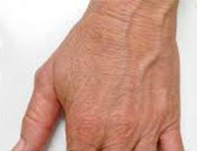 Effective Treatmentcryoskin Afrer