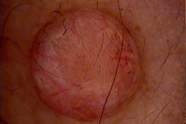 spider naevi treatment